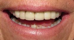 Dentistry-in-Mexico~~element402