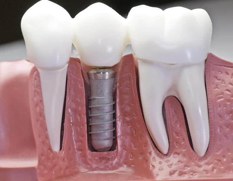Quality Dental Implants Mexico, Tijuana Dentist Clinic, Tijuana ...