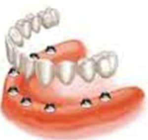 implant_bridges