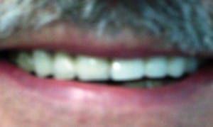 Armon_after_dentists_in_mexico
