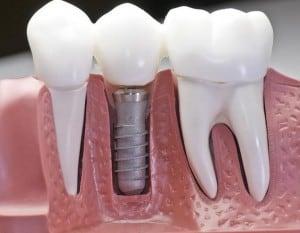 implante dental inmutable precio mexico