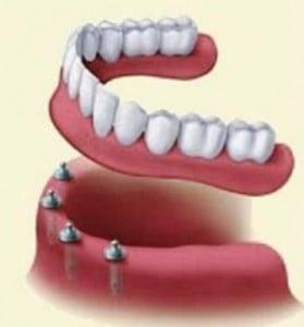 denture_implant_1