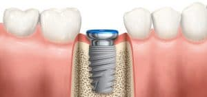 dental implant samaritan